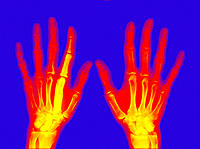 Coloured X-Ray of hands