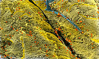 Collagen fibres. Coloured scanning electron micro- graph (SEM) of collagen fibres (yellow). These fibres are from the supportive layer which underlies...