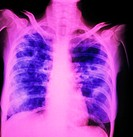 Post-primary cavitating tuberculosis. False-colour Chest X-ray showing extensive fibrosis in both lungs (blue areas), the consequences of primary pulm...