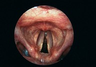 Vocal cord nodule. Endoscope view of the larynx (voice box) of a patient, showing a nodule (small lump, centre) on the left vocal cord (lower right). ...