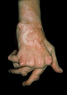 Rheumatoid arthritis. Hand of an elderly woman suffering from rheumatoid arthritis. The fingers are bent abnormally (ulnar deviation) due to damage an...
