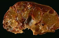 ´Ascites of the liver. Gross clinical specimen of a section   through  a human  liver  with   ascites. Ascites is the  abnormal  accumulation  of  flu...