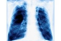 EMPHYSEMA LUNG RADIO<BR>Pulmonary emphysema is characterized by pulmonary alveola that are unable to completely deflate (hyperinflation), the rupture ...