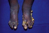 Kaposi´s sarcoma tumours.  Image 1 of 2. Ulcerated Kaposi´s  sarcoma tumours on the feet of a patient with AIDS.   AIDS  (acquired  immune    deficien...