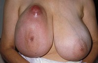 Breast cancer.    Woman  with  a  large  carcinoma (tumour) protruding from her right breast. This is a fairly advanced case of  breast  cancer:    mo...
