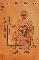 SG hist. Medizin, Huichun, chinesische Heilkunde, Krankheitsbild, Abbildung der Geschwüre mit Menschengesicht, 1742  china, chinesisch, illustration, ...