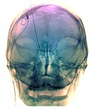 Parkinson´s disease. Coloured X-ray of a frontal view of the head of a patient with Parkinson´s disease, showing electrodes implanted in the brain (ce...