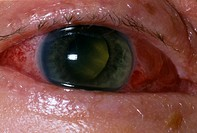 Eye injury. Blood in a 56-year-old man´s eye. The sclera (white) of the eye was perforated by the explosive impact of a bottle top. This is known as g...