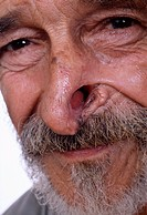 Skin cancer. Face of a patient after surgical removal of a skin cancer from his nose. The most common form of skin cancer, basal cell carcinoma, usual...