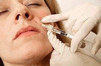 Restylane treatment. Image 6 of 8. Clinician injecting a female patient´s upper lip area with Restylane. Restylane, a biodegradable gel based on hyalu...