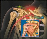 Shoulder trauma: clavicle fracture and dislocation, rotator cuff tear (inset).