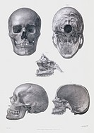 Skull anatomy. Historical anatomical artwork of various views of the human skull. The frontal view (upper left) shows the teeth, nose and eye spaces, ...