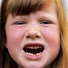 Loss of milk teeth. 6-year-old girl showing the loss of one of her primary (milk) teeth. Primary teeth are naturally lost during childhood and replace...