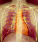 Breathing. Coloured X-ray showing inhalation. The horizontal bands are the ribs, enclosing the lungs (dark purple). The heart is the orange mass at ce...