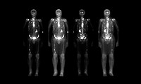 Composite of nuclear medicine bone scans of patients with cancer (metastatic disease) that spread to the bony skeleton. This study is performed after ...