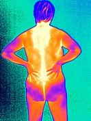 Painful back. Thermogram of the back of a naked woman holding her painful back. The colours show variation in temperature. The scale runs from white (...