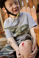 4 year old boy wincing after hurting knee