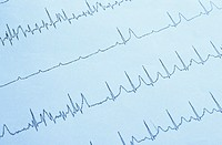 Aufzeichnung eines EKGs - Krankenhaus - Leben - Technologie , ECG Recording - Hospital - Life - Technology ,  fully-released