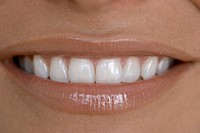 Woman´s toothy smile, close up