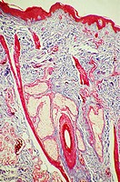 Hair follicle in skin (thumbnail)