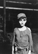 A child industrial worked with a chin sore and tattered clothing.