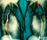 Enlarged heart. Coloured chest X-rays of a right side-view (left) and a left side-view (right) of a patient with an enlarged left ventricle of the hea...