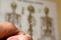 Acupuncture needle in hand,