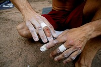 Blessed hands because of rock climbing. Pinares de Rodeno. Albarrac&#237;n. Teruel. Spain