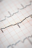 Close-up of an electrocardiogram report