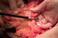 Surgeons removing an entire colon (total colectomy) due to chronic ulcerative colitis. A surgeon is dividing the mesocolon with a Ligasure vessel seal...