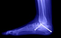 X-ray of an ankle fracture.
