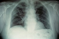 LEGIONNAIRE´S DISEASE<BR>After 10 days of treatment, patient has recuperated the majority of respiratory capacity. Image 2 of 2.