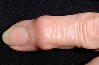 Heberdens node on a 78-year-old woman´s finger  The node is at the final distal joint of the finger, and is a complication of osteoarthritis  Osteoart...