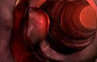 Tumour of the duodenum