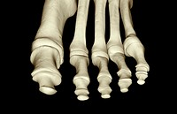 The bones of the foot (thumbnail)