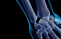 The bones of the wrist