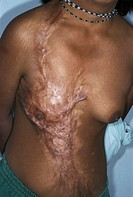Scar on the chest of a yound Bolivian woman who was struck by lightning approximately two years prior to this picture