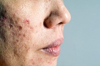 Acne scars  Scarring on a 38 year- old woman´s face caused by persistent acne  Acne vulgaris is a skin disorder in which the sebaceous glands of the s...