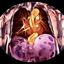 Dissecting aorta  Coloured 3D magnetic resonance imaging MRI scan of the chest of a patient with a dissecting aorta  The heart is at centre  The aorta...