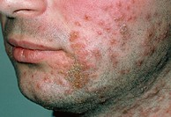 Impetigo  Close-up of crusty, yellow sores on the face of a man caused by impetigo  Impetigo is a highly contagious bacterial skin infection that usua...