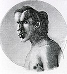 Joseph Merrick, The Elephant Man 1862-1890  Historical artwork of Joseph Merrick, a British man called The Elephant Man for his disfigured face and li...