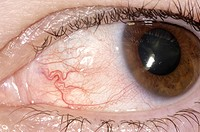 Episcleritis of the eye of a 47 year old man. Episcleritis is the inflammation red area of the sclera, the white of the eye. This condition is most co...
