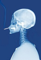 X_Ray Of Smoking Skeleton