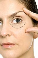 Woman with plastic surgery markings under one eye, touching face, looking at camera