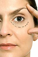 Woman with plastic surgery markings under one eye, touching face, looking at camera, close-up