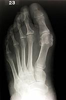 Bunion. X_ray of a foot with a bunion hallux valgus, projection at upper right. Bunions are swellings of the joint between the big toe and the first m...