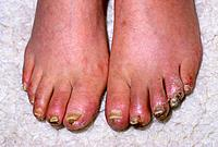 Oedema swelling and gangrene affecting a person´s toes. Gangrene is a general term for the death & decay of part of the body due to a reduction or ces...
