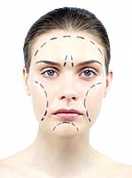 Facelift surgery markings. Guide lines for surgical incisions on a patient´s face.