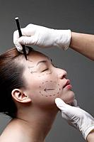 Woman has her face drawn around her eye in preparation for cosmetic surgery
