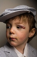 Little boy with a bruised eye